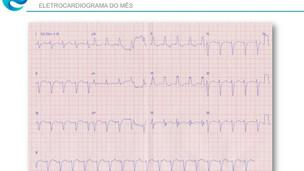 Eletrocardiograma do mês – caso 1