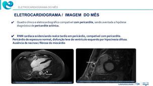 Eletrocardiograma do mês: Pericardite Actínica