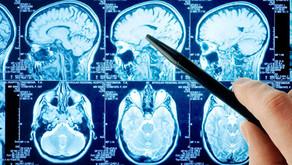 Monitorização em Neurointensivismo