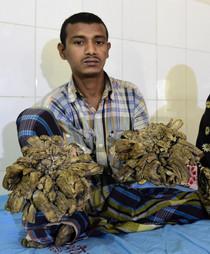 Una enfermedad rara le dio manos de ramas de árbol. Después de 16 cirugías, finalmente puede ver sus