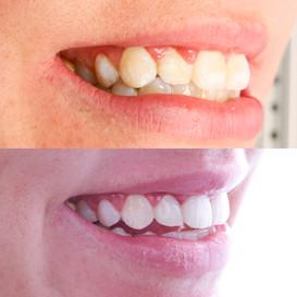Misfarging på tenner