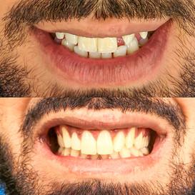 Mange mellomrom tannlege