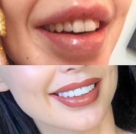 Tannlege Influencer behandling