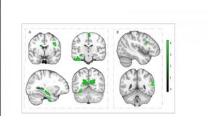 Spor Yapan Çocuklarda Beyin Daha Güçlü
