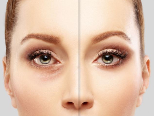 Lower Eyelid Rejuvenation
