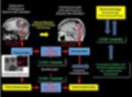 personalisierte Therapie Glioblastomrezidiv