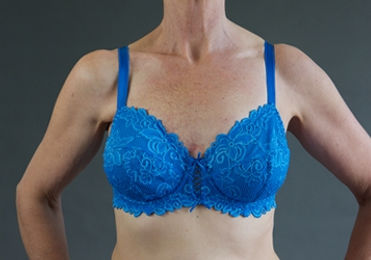 Perfect Again Breast Forms | Mastectomy Bras | Australia | Products | Lightweight Breast Form | Comfortable Breast Forms | Natural Feeling Breast Forms | Post Cancer Surgery | Breast Form in Blue Bra