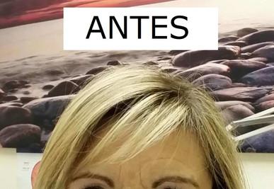ARRUGAS ENTRECEJO ANTES.jpg