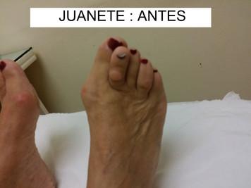 JUANETE ANTES