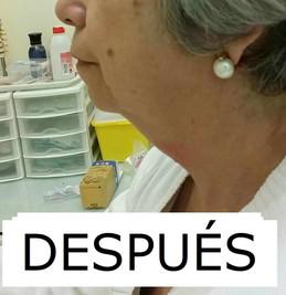 PAPADA_DESPUÉS.jpg