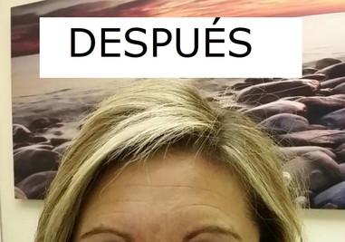 ARRUGAS_ENTRECEJO_DESPUÑES.jpg