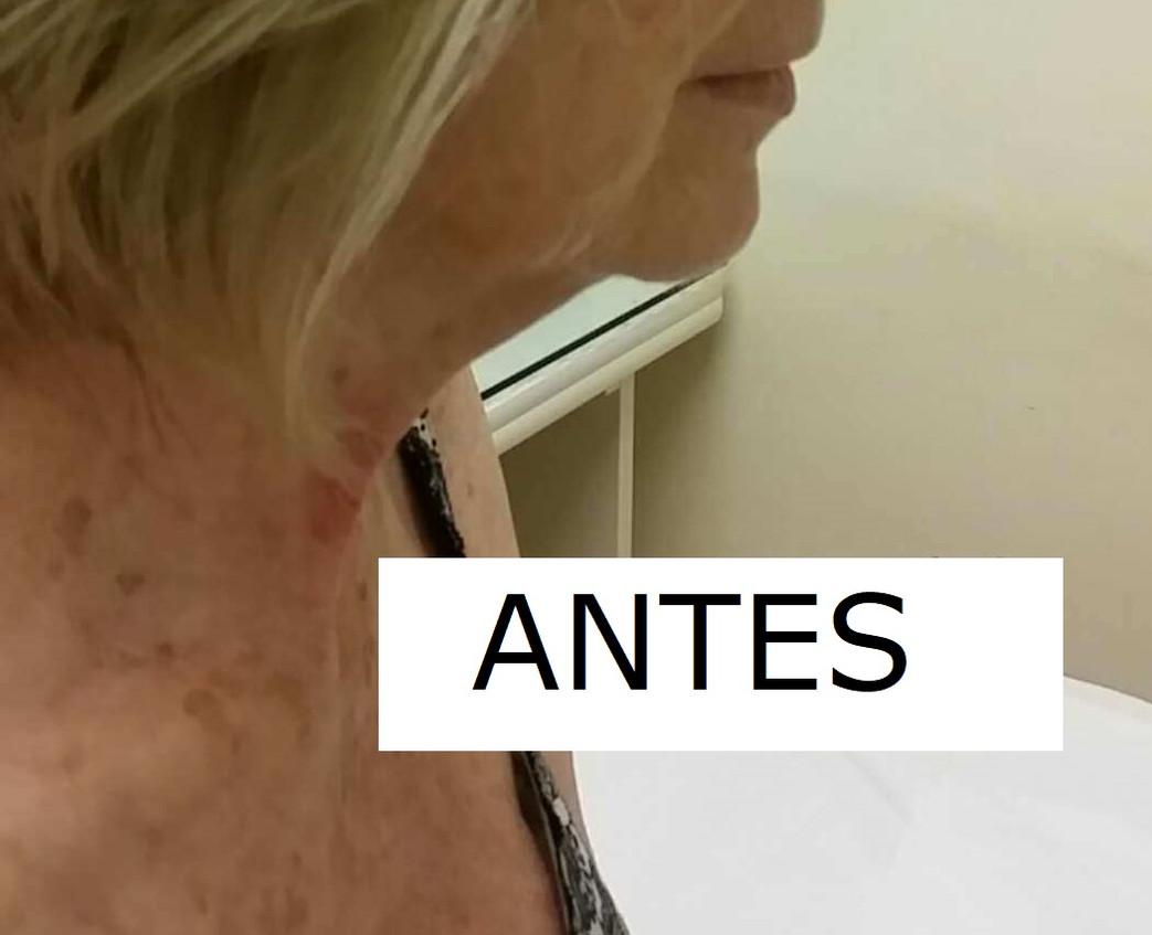 MEJILLA CAIDA ANTES.jpg