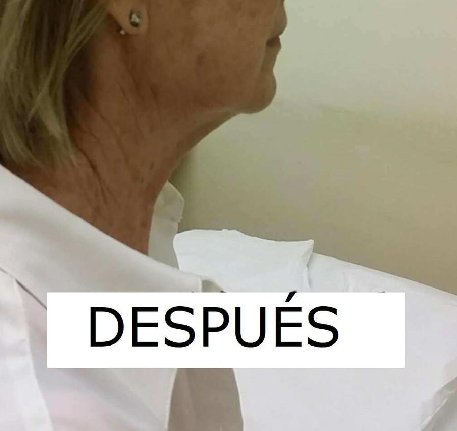 MEJILLA_CAIDA_DESPUÉS.jpg