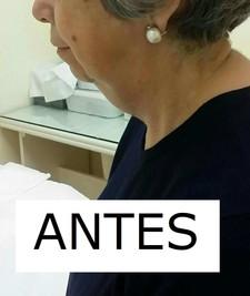PAPADA ANTES (1).jpg