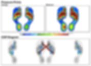 Gait Analysis Image.png