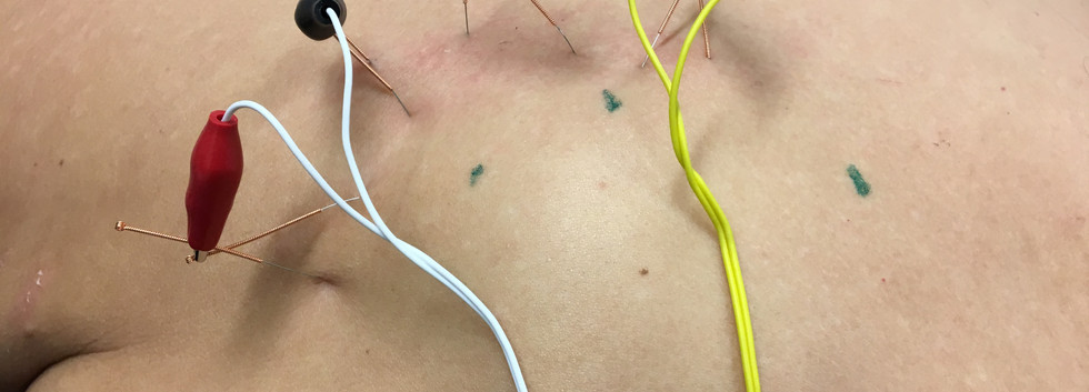 IDN and Electrotherapy