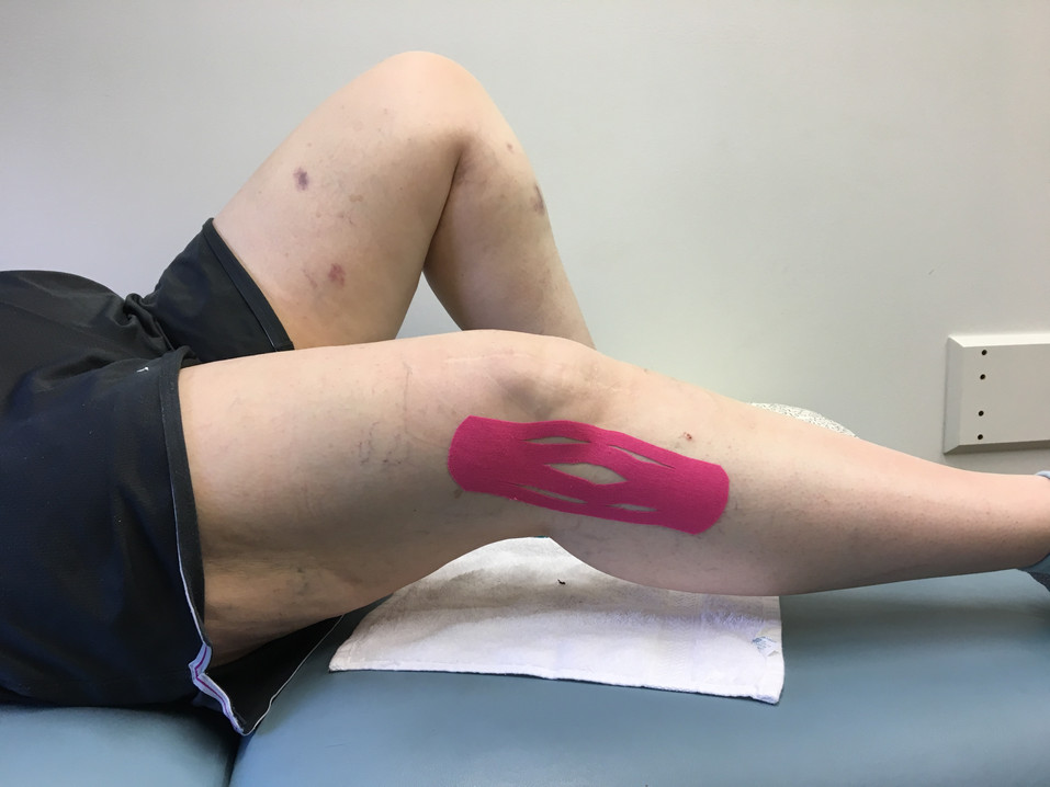 SIDEVIEW KNEE TAPE.JPG