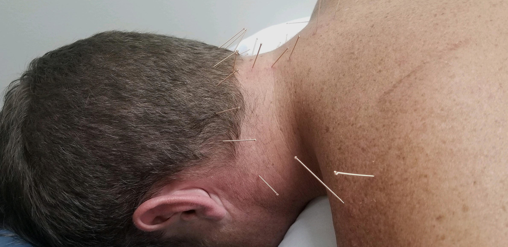 Integrative Dry Needling