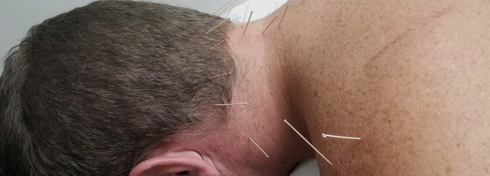 Integrative Dry Needling