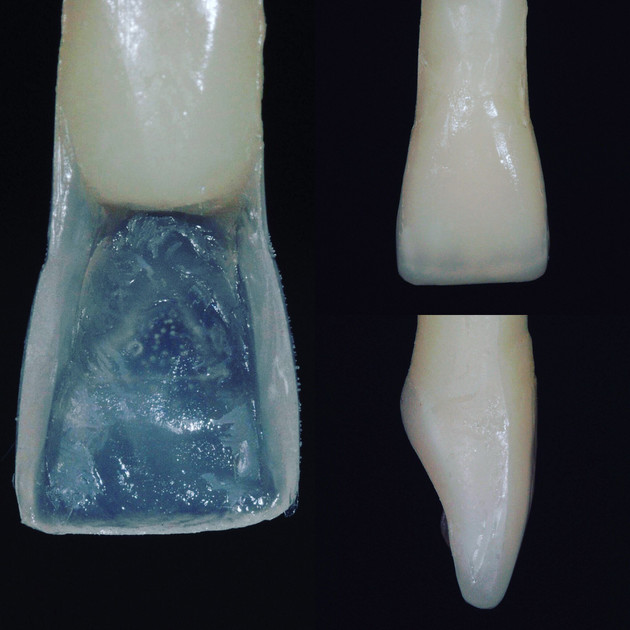 Central Incisor made out of full contour Synergy D6 Resin Composite from Coltene