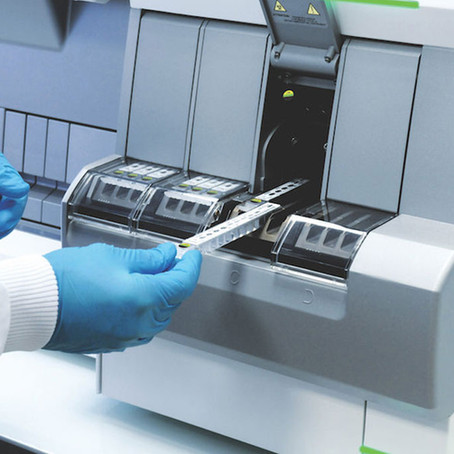 ¡Ya está disponible en Argentina! VIDAS® SARS-COV-IGG II semi-cuantitativo