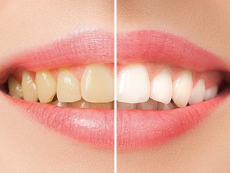 【必見 日本人の平均の歯の色】