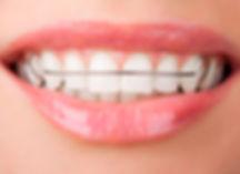 Съёмный ортодонтический аппарат.jpg