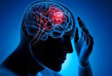 brain tumor.jpg