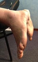 tendon-d-Achille