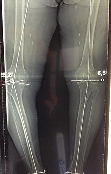 radiographie-du-genou