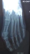 deformation-du-pied