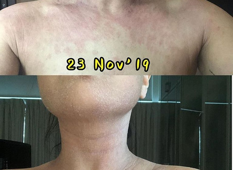 Healing takes time; topical steroid withdrawal.