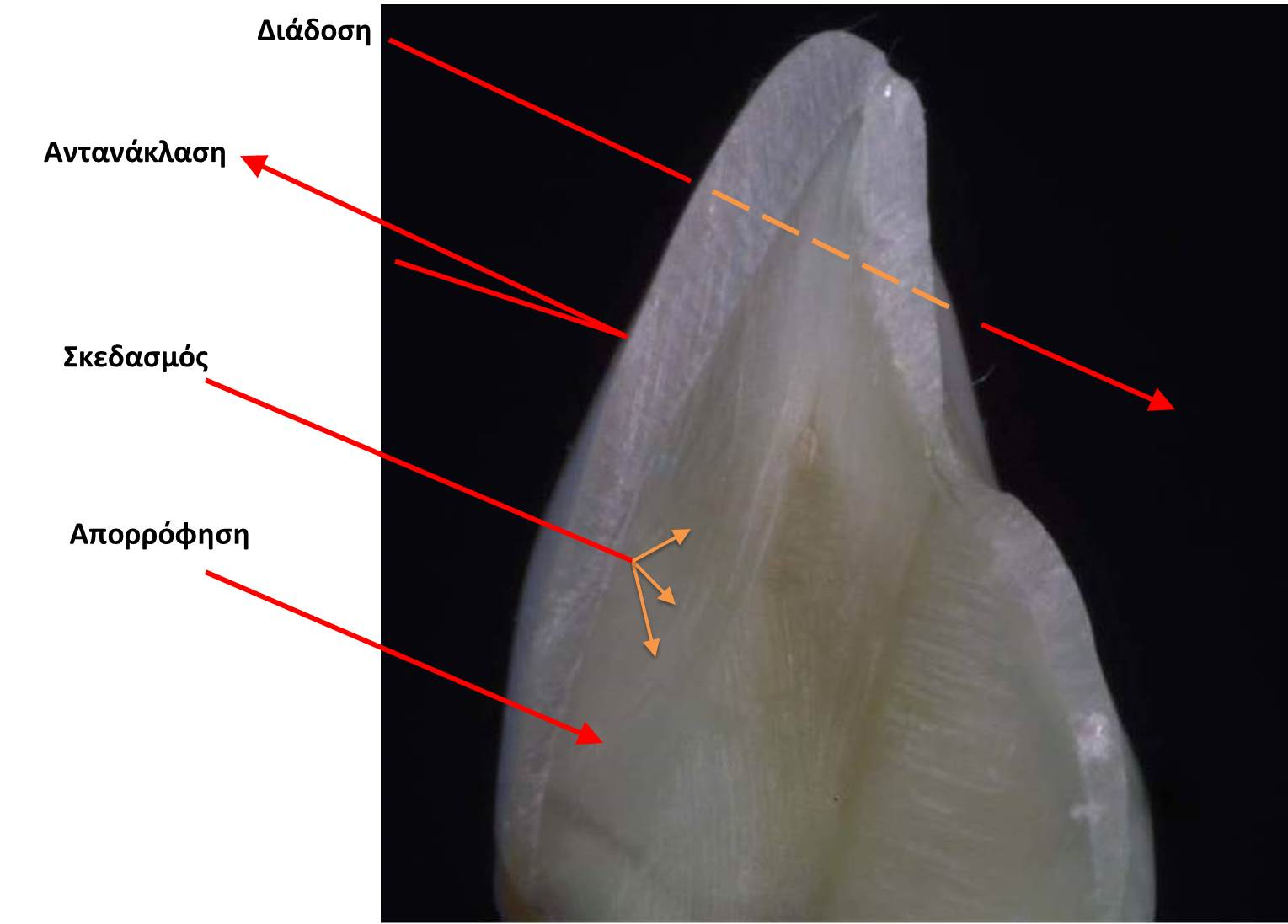 Optical properties of natural teeth