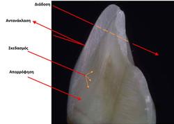 Οπτικές ιδιότητες φυσικών δοντιών