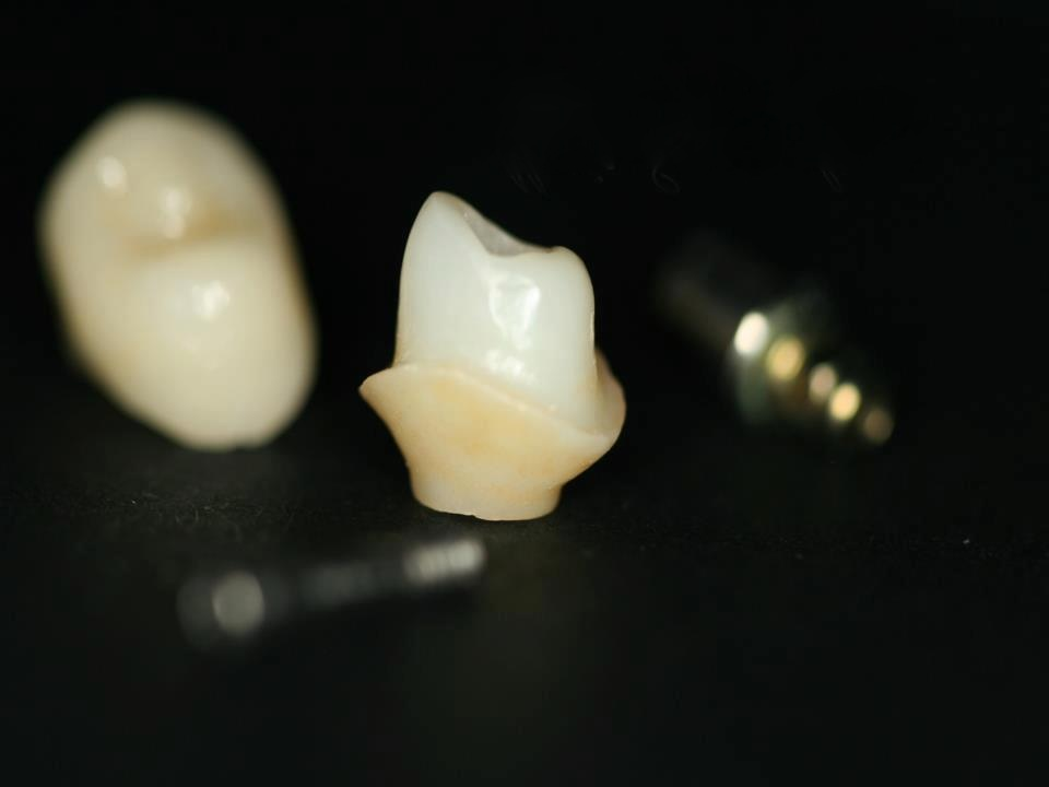 IPS e.max abutment solutions