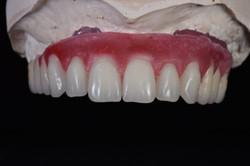 Δοκιμή με σύνταξη δοντιών