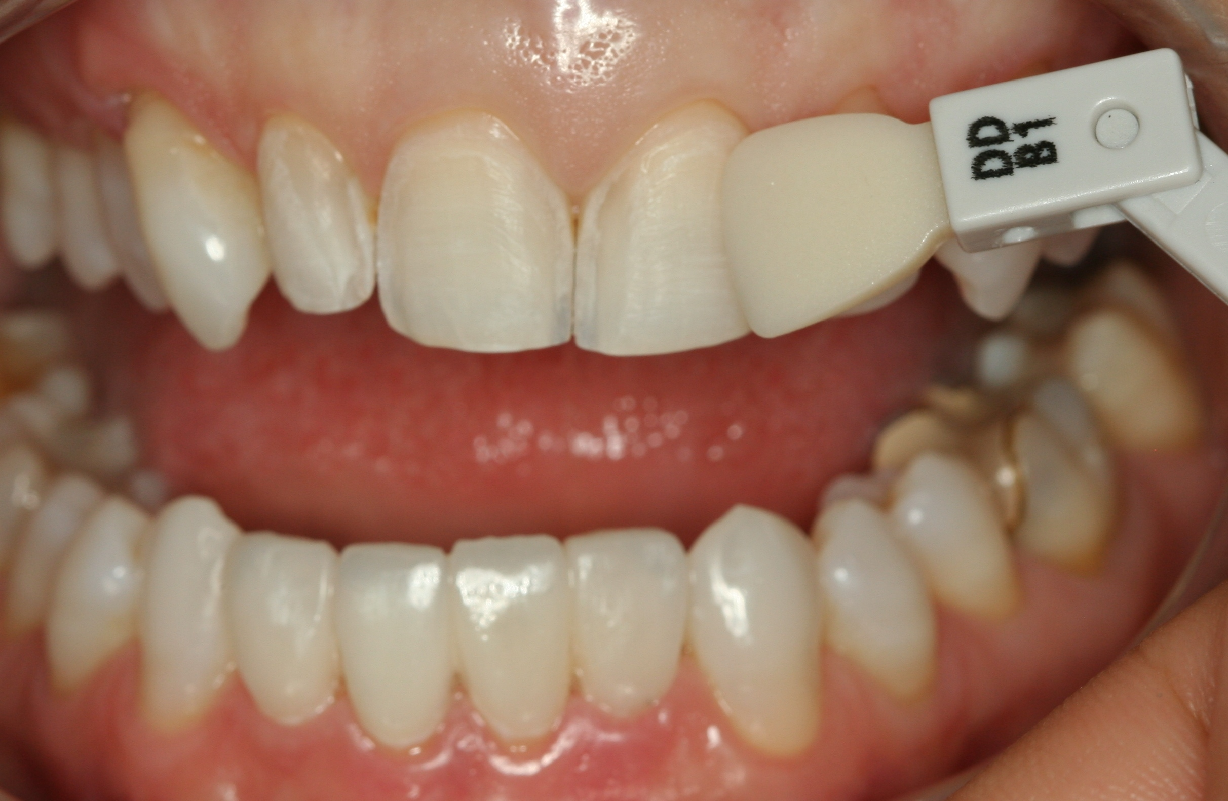 IPS e.max thin veneers.JPG