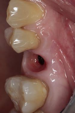 Διαμόρφωση μαλακών ιστών