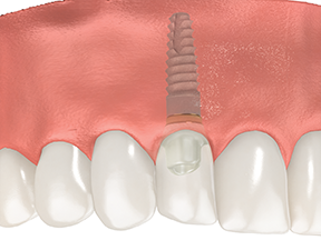 Artificial Tooth after Implant