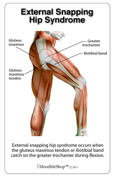 external-snapping-hip-syndrome