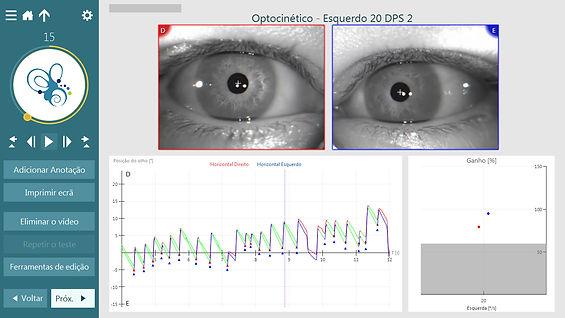 pesquisa do nistagmo optocinético, provas oculomotoras na video-oculografia e exame otoneurológico. rastreio pendular, movimentos sacádicos, provas posicionais, manobra Dix-Hallpike, prova calórica ar.