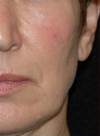 Client A - After Series of 6 Peels