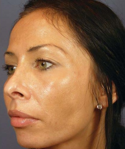 Client B - After Series of 8 Peels