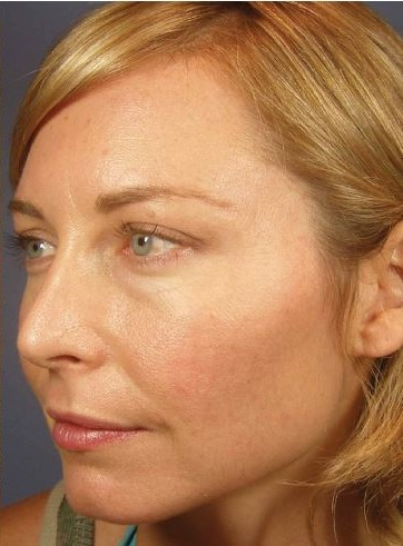 Client C - After Series of 12 Peels