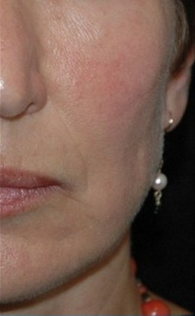 Client A - After Series of 12 Peels