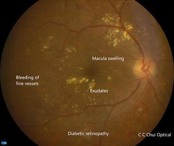 Diabetic retinopathy RE (1).jpg