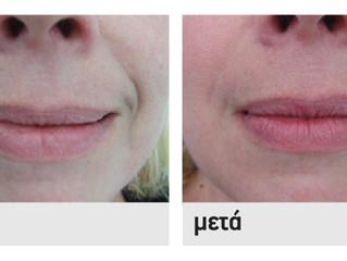 To Υαλουρονικό Οξύ στο Οδοντιατρείο
