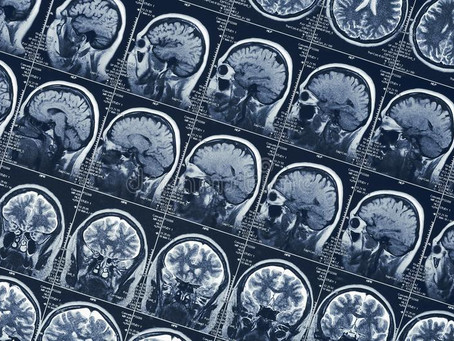 On the Novelty of Neurology