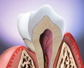periodontitis, enfermedad periodontal, gingivitis, encía, periodoncia