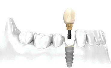 Implantes cáceres, implante caceres, dentista caceres, clinica dental cacereña